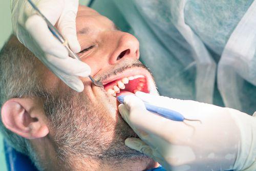 Wurzelbehandlung beim Zahnarzt