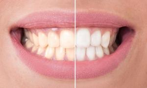 strahlend weiße Zähne dank Bleaching