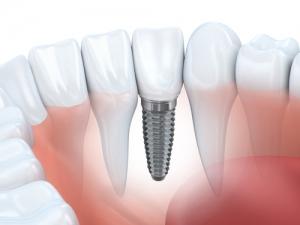 Zahnimplantate Zahnarztfreiburg